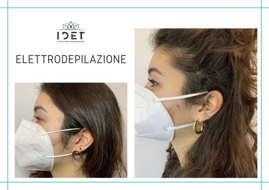 Elettrodepilazione basette - Roma IDET